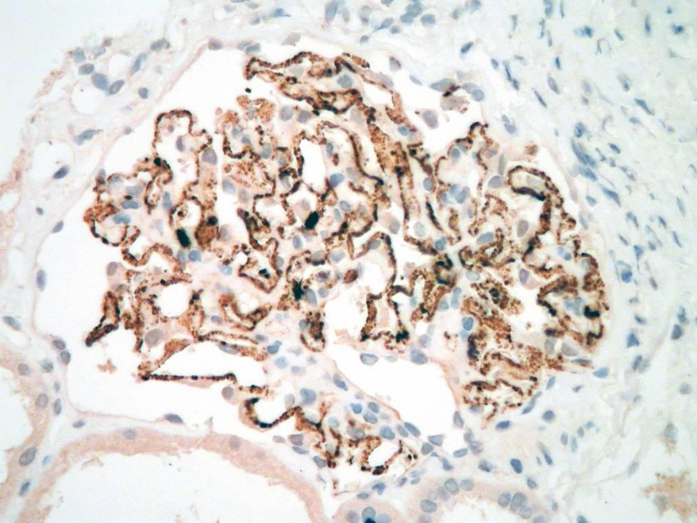 4- Membranous - PLA2R positive