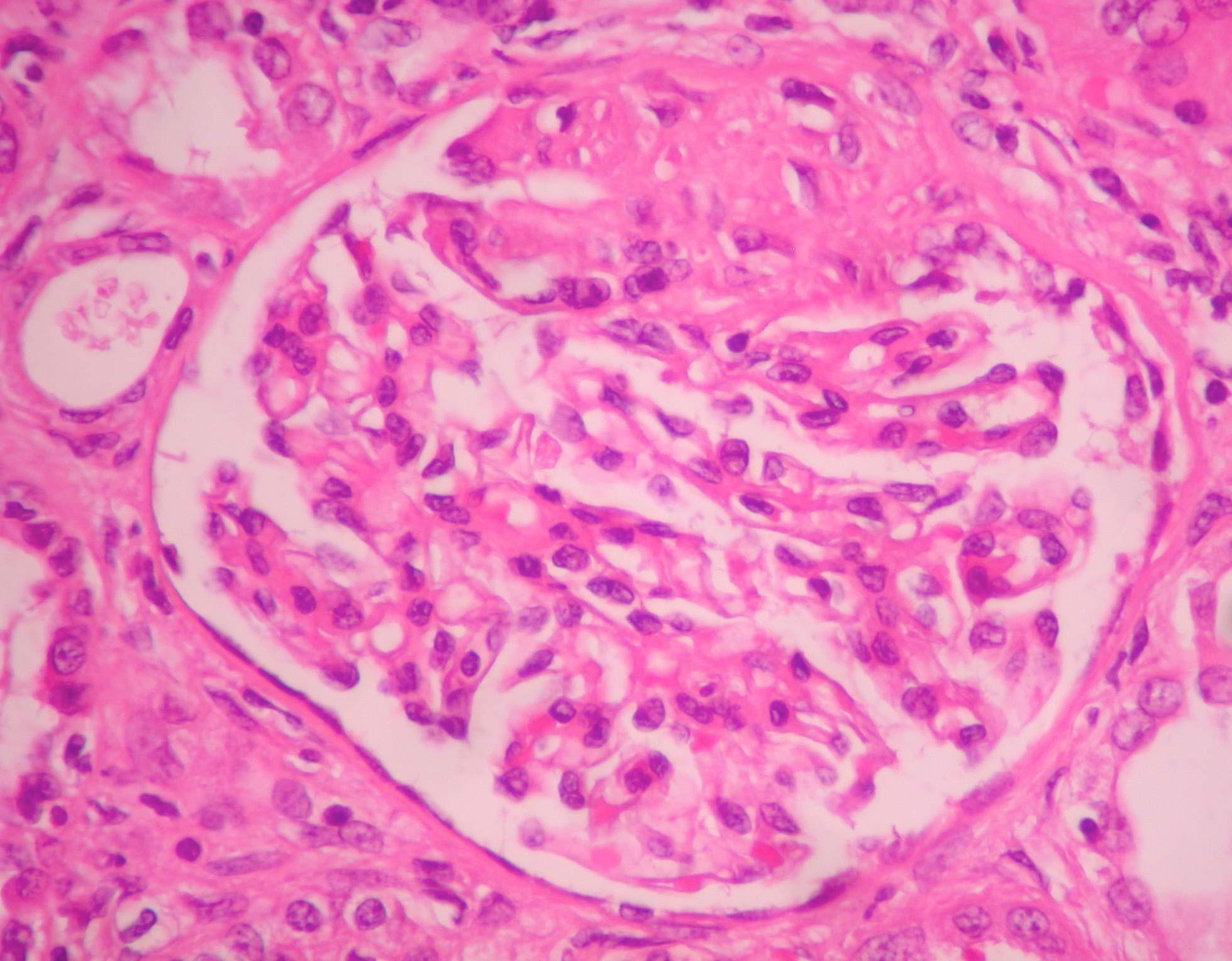 400x HE esclerose segmentarDSCN4672