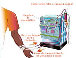 hemodialise01