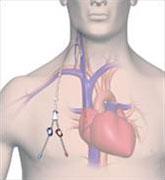 hemodialise03